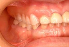 ノンクラスプ義歯を入れたところ